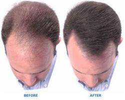 hair growth products + men + receding hairline