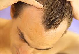 receding hairline treatments for men