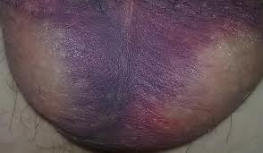 Scrotal Hematoma