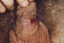 Syphilis + dry skin on penis